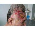 Современные подходы в лечении язвенной формы базалиомы волосистой части головы