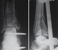 Discussion questions in surgical treatment of pilon fractures