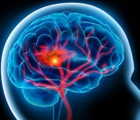 Possibilities of antioxidant pharmacotherapy in chronic brain ischemia