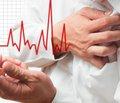 Кардиореспираторные нагрузки и риск возникновения фибрилляции предсердий. Результаты проекта нагрузочного тестирования Генри Форда