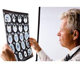 Особливості формування когнітивних порушень ухворих увіддаленому періоді черепно-мозкової травми