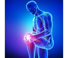 Майстер-клас. «Опорно-руховий апарат та лікар первинної ланки: остеоартроз у фокусі»
