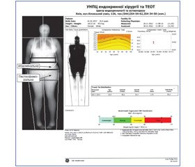 Особливості артеріальної гіпертензії залежно від кількості та розподілу жирової тканини у хворих на цукровий діабет 2-го типу
