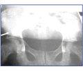 Роль остеосцинтиграфії, рентгенографії та ультразвукового дослідження в діагностичному скринінгу при ендопротезуванні кульшових суглобів
