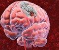 Нейроксон® в лечении больных с ишемическим инсультом