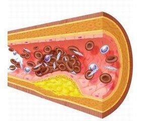 Эндотелиальная дисфункция при кардио- и цереброваскулярных заболеваниях: значение и возможности фармакологической коррекции