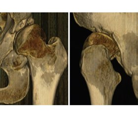 Patterns of acetabular sectoral deficiency in hip dysplasia