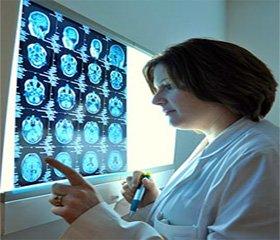 Ефективність препарату Тіоцетам® у хворих ізлакунарними інфарктами головного мозку