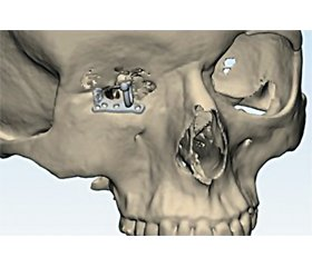 New approaches to orbital exoprosthetics using CAD/CAM technologies