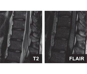 A case of acute myelitis as a neurological complication of COVID-19