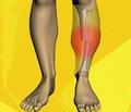 Сравнительный теоретический анализ биомеханических аспектов остеосинтеза припоперeчном переломе большеберцовой кости контактными и малоконтактными пластинами (Сообщение первое)