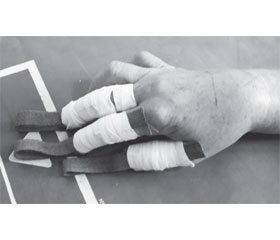 Technology for Reposition of Distal Radial Epiphysis Fractures