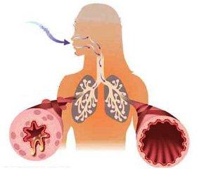 Predictors for Asthma Formation in School-Age Children in Ternopil Region