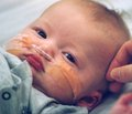 Абдомінальний больовий синдром у дітей   із патологією підшлункової залози (за даними катамнезу)