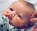 Профілактика інтраабдомінальних зрощень після перенесених гнійно-запальних захворювань органів черевної порожнини у дітей