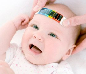 Diagnosis, treatment and prognosis of epileptic seizures in children with hydrocephalus