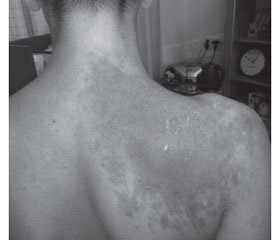 Metachromatic leukodystrophy with schizophrenia-like onset (literature review and clinical case)