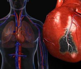 Гострий коронарний синдром: догоспітальна реперфузійна терапія та кардіопротекція в клінічній практиці