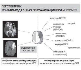 Научный симпозиум компании EVER pharma «стратегии лечения и реабилитации острого периода ишемического инсульта» врамках II конгресса Европейской академии неврологии (EAN) 30мая 2016года