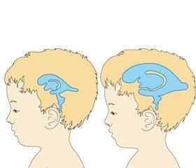 Нові можливості корекції внутрішньочерепної гіпертензії у дітей із нейроінфекціями