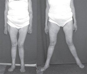 Особливості ендопротезування кульшового суглоба при тяжких типах дисплазії