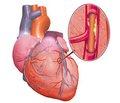 Кардиоренальный синдром у больных хронической болезнью почек и ишемической болезнью сердца