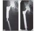 Результати ендопротезування великих суглобів у хворих з пухлинами кісток та причини ускладнень
