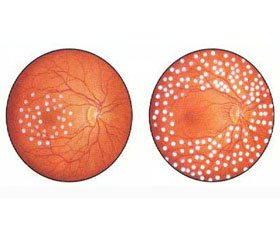 Prognostic Value of Proteolysis Indexes in the Formation of Diabetic Retinopathy