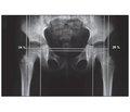 Методика рентгенологічного обстеження кульшових суглобів у пацієнтів із дитячим церебральним паралічем