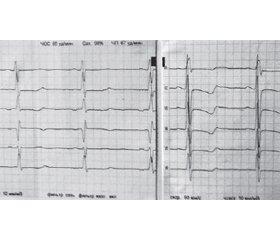Сложный случай легочной артериальной гипертензии, ассоциированной с портальной гипертензией