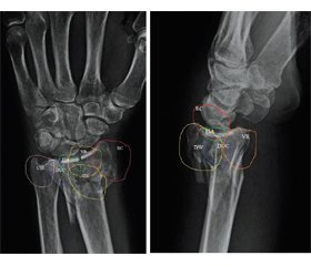 Biomechanical modeling in determining the fixation strength of various implants in the treatment of type C3 intra-articular distal radius fracture (biomechanical study)