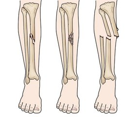 Treatment of diaphyseal fractures of the bones of the lower extremity by using BIOS method in polytrauma