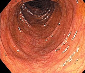 Modern possibilities of colonoprotection in patients with irritable bowel syndrome