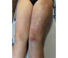 Clinical case of erythema ab igne caused by the laptop