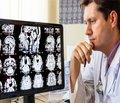 Формирование отдаленных последствий черепно-мозговой травмы