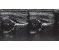 Можливості корекції затримки формування ядер окостеніння кульшових суглобів у дітей раннього віку