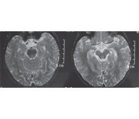 Herpes Simplex Encephalitis in Children
