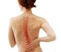Симптоми поперекового остеохондрозу