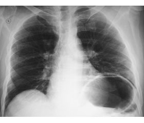 Diaphragm Dysfunction in Children with Acute Respiratory Failure