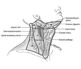 Дисекція лімфатичних вузлів за диференційованого раку щитоподібної залози: огляд сучасних тенденцій
