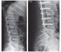 Results of the vertebral body regeneration during surgical treatment of burst fractures  of the thoracic and lumbar spine