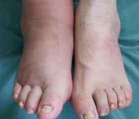 При сахарном диабете могут опухать стопы ног