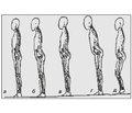 Зміни динамічних характеристик у суглобах нижньої кінцівки до та після ендопротезування колінного суглоба у хворих на ревматоїдний артрит