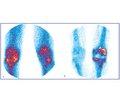 Роль остеосцинтиграфії в програмі обов'язкового діагностичного скринінгу приендопротезуванні колінних суглобів