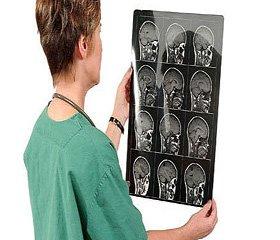 Використання системи нейронавігації при стереотаксичній біопсії вогнищевих утворень головного мозку: досвід 107 операцій