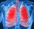 Влияние сопутствующей гастроэзофагеальной рефлюксной болезни на клиническое течение и функцию внешнего дыхания у больных хроническим обструктивным заболеванием легких