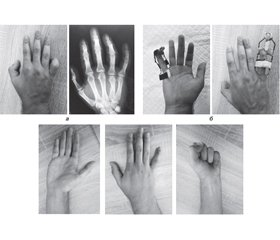 Features of conservative treatment of patients with post-traumatic stiff interphalangeal joints