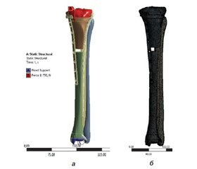 Biomechanical analysis of reliability of fragments fixation during the osteosynthesis of the proximal tibial fractures with LCP-plate and the intramedulary locking nail