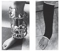 Bilocal osteosynthesis of the tibia with ring fixators in the treatment of nonunions