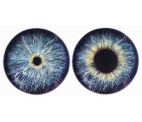 Pupillary diameter in brain death or clinical death: is it reliable?